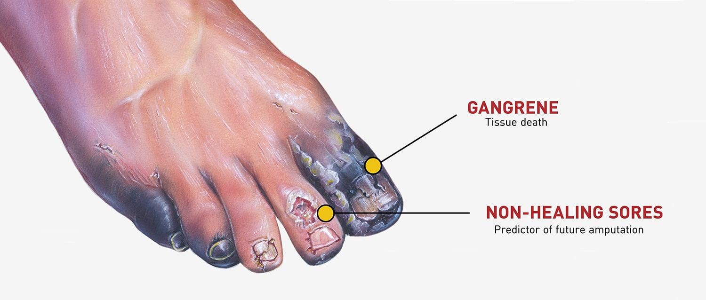 Gangrene Foot_small2