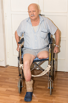 amputation_wheel_chair_PAD_Avinger_sm