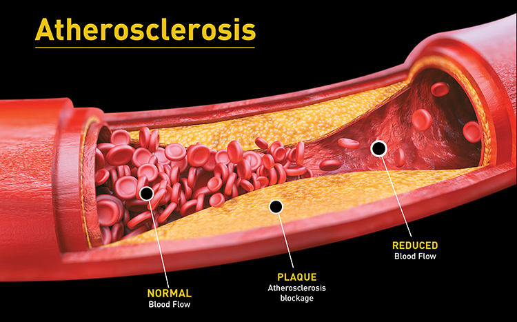 atherosclerosis_full_call_outs